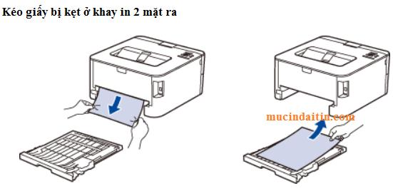 Kéo giấy bị kẹt ở khay giấy in 2 mặt máy in brother